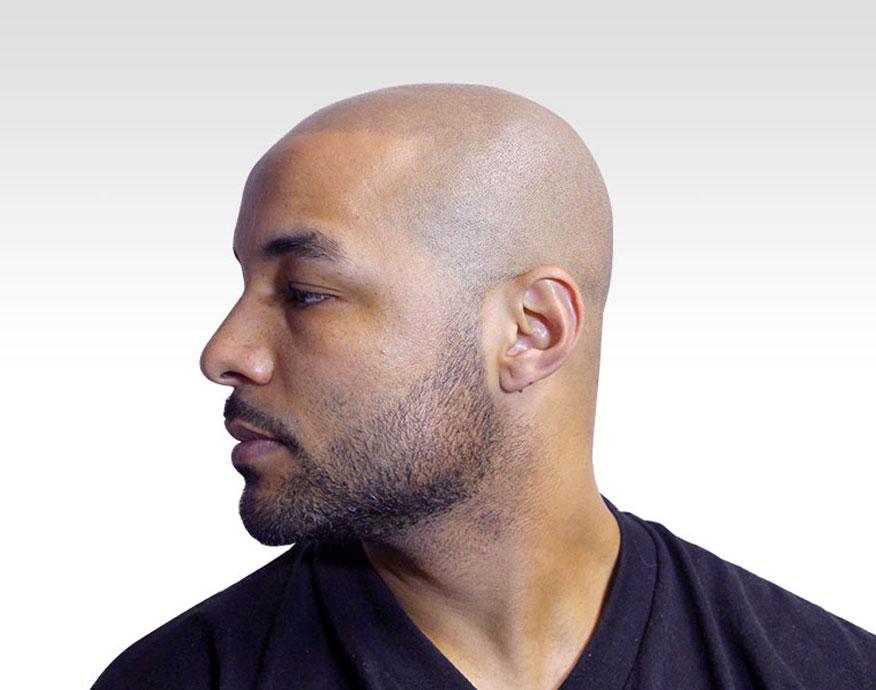 linea frontale tricopigmentazione