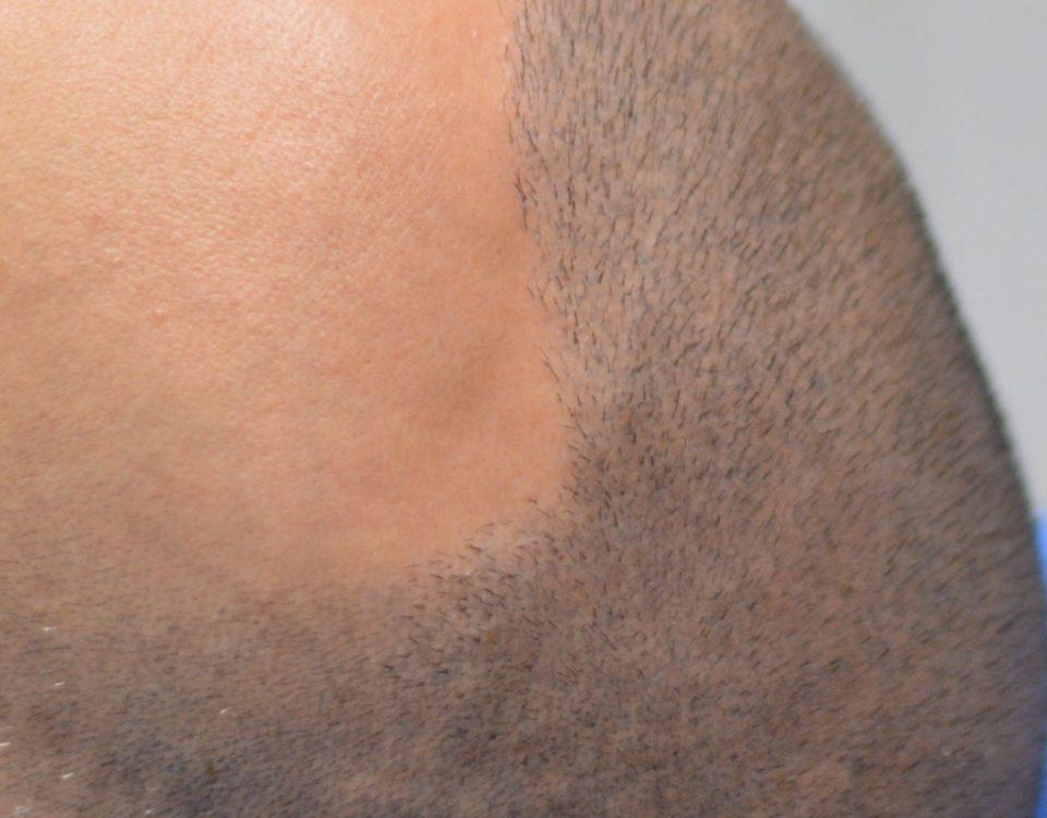 tricopigmentazione e trapianto