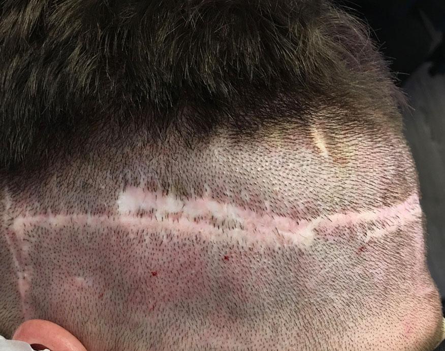 smp, tricopigmentazione su cicatrice